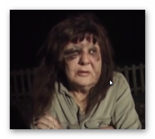 photo of a female victim of domestic abuse with both eyes blacked